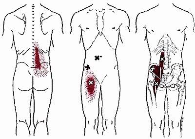 zeurende pijn knieholte